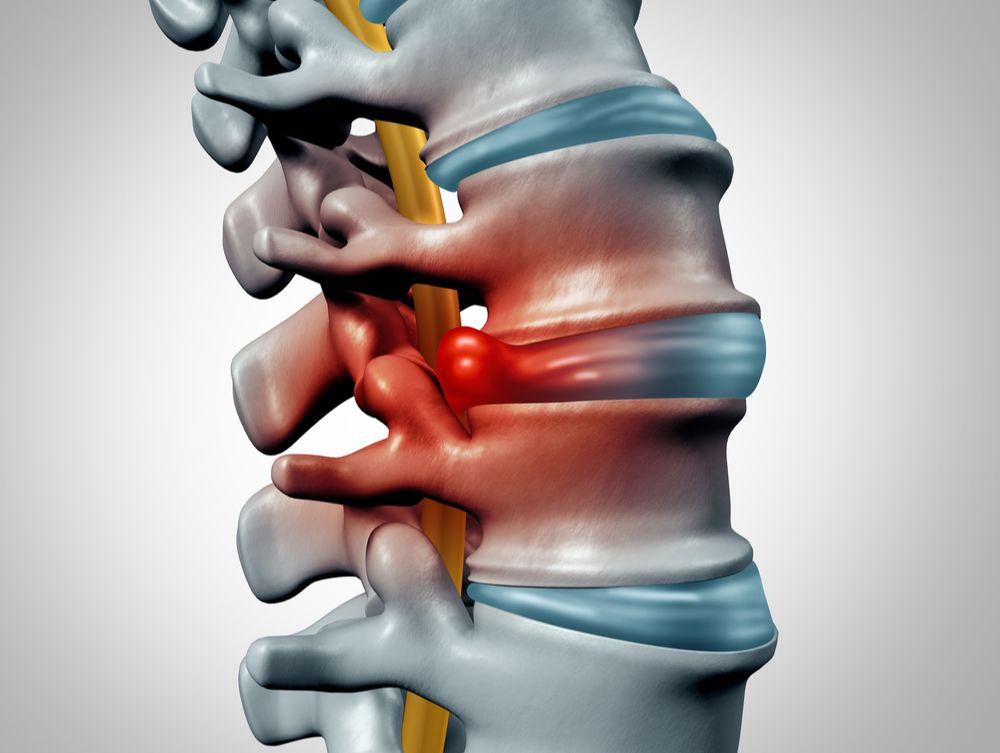 Herniated Disc How a Chiropractor Can Help | Premier Injury Clinics of DFW