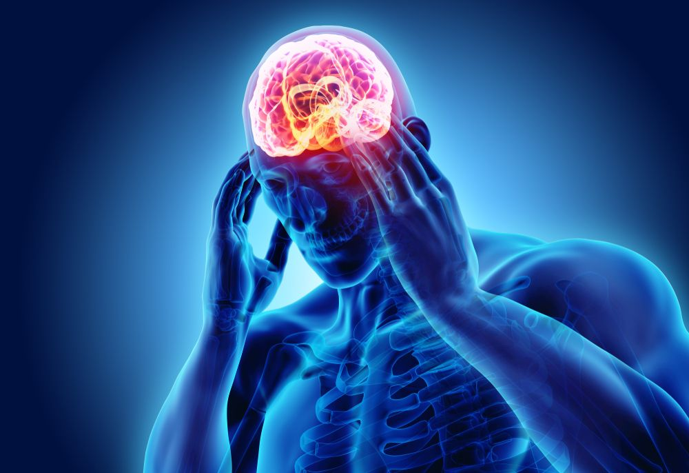 A Chiropractor's Approach to Treating Headaches | Premier Injury Clinics of DFW
